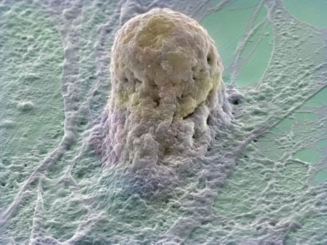 Human embryonic stem cell (gold) growing on a layer of supporting cells (fibroblasts). Stem cells are derived from very early embryos and can be either grown to stay in their original state or triggered to form almost any type of human cell.